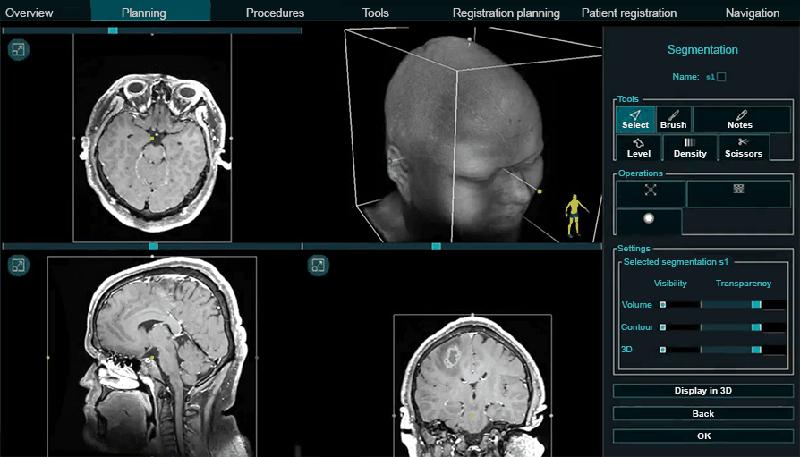 Neuronavigator: optical navigation system for neurosurgeons